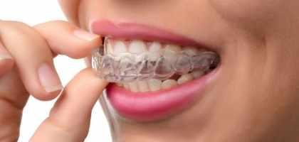 Cura del Bruxismo con il Bite dentista roma