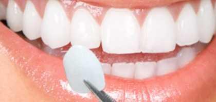 Faccette Dentali dentista roma