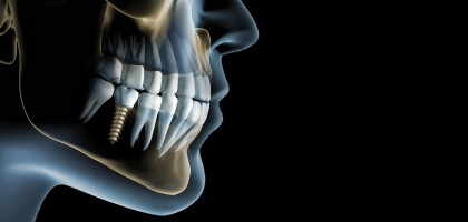 Protesi dentarie, dentiera dentista roma