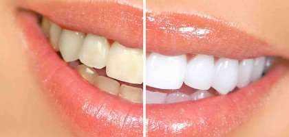 offerta Faccette dentali
